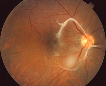 Eye Scan Showing Macular Pucker